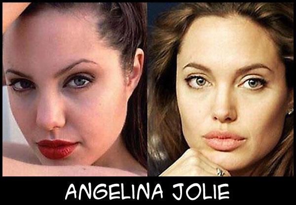 O poder da cirurgia plástica AngelinaJolie