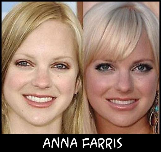 O poder da cirurgia plástica AnnaFarris