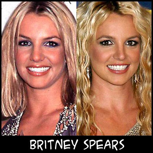 O poder da cirurgia plástica BritneySpears