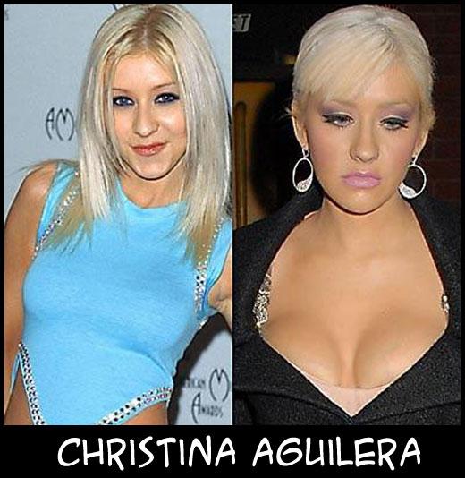 O poder da cirurgia plástica ChristinaAguilera