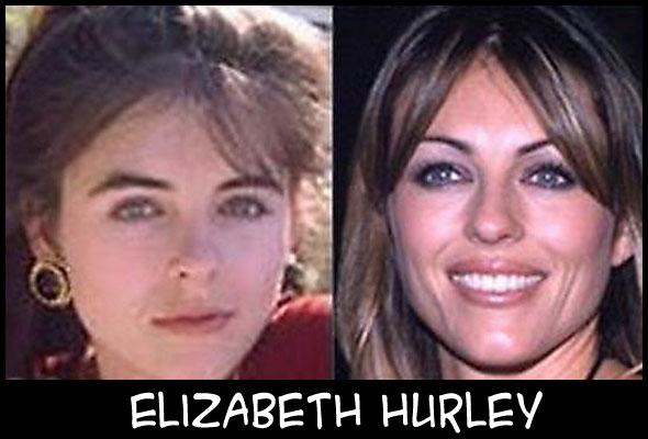 O poder da cirurgia plástica ElizabethHurley
