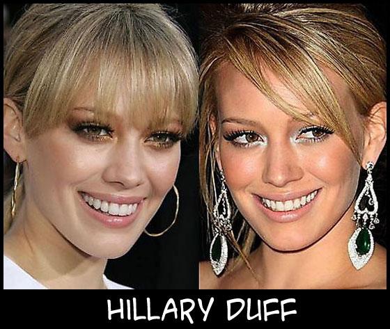 O poder da cirurgia plástica HillaryDuff