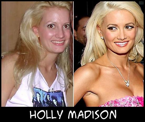 O poder da cirurgia plástica HollyMadison