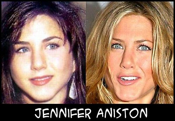 O poder da cirurgia plástica JenniferAnniston