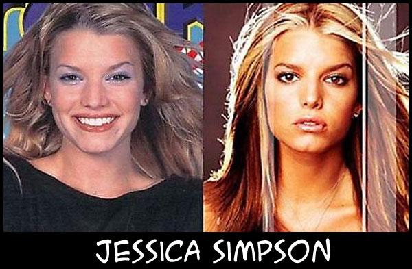 O poder da cirurgia plástica JessicaSimpson