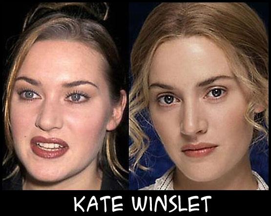 O poder da cirurgia plástica KateWinslet