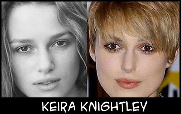 O poder da cirurgia plástica KeiraKnightley