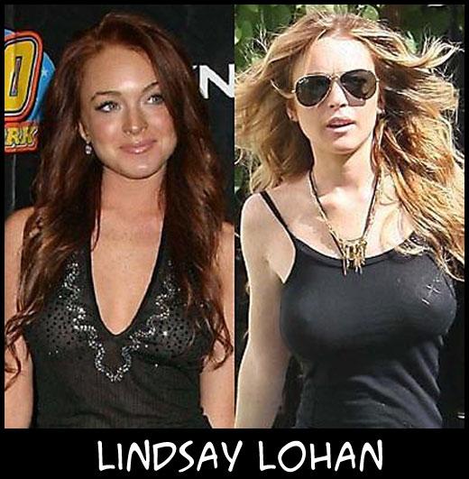 O poder da cirurgia plástica LindsayLohan