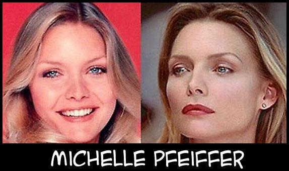 O poder da cirurgia plástica MichellePfeiffer