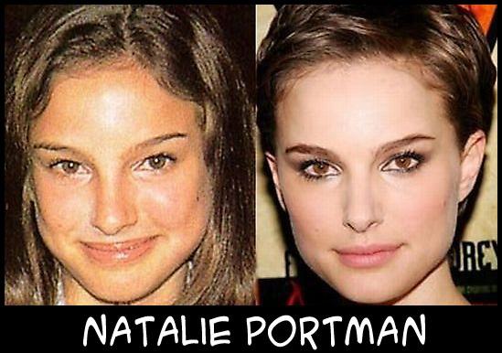 O poder da cirurgia plástica Natalie-Portman