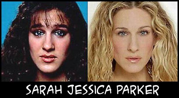 O poder da cirurgia plástica SarahJessicaParker