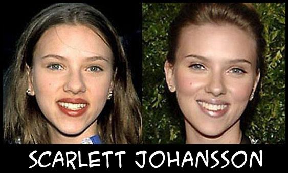 O poder da cirurgia plástica ScarlettJohansson