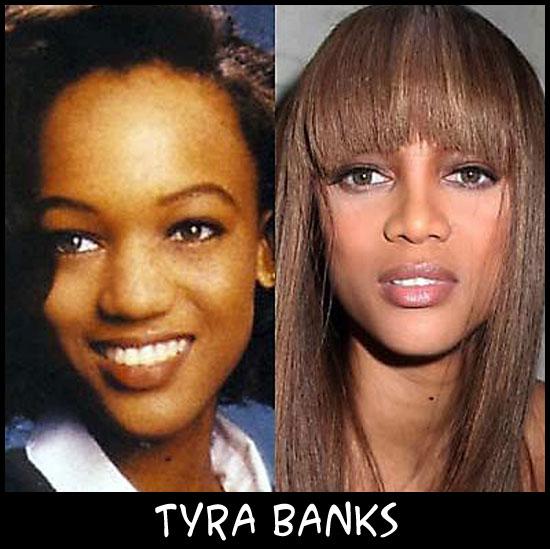 O poder da cirurgia plástica TyraBanks